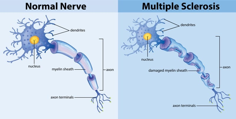 Multiple Sclerosis symptoms attacking the nerve