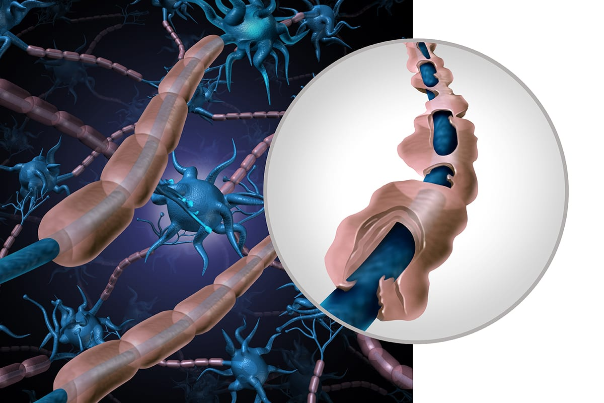 Multiple Sclerosis can cause parasites